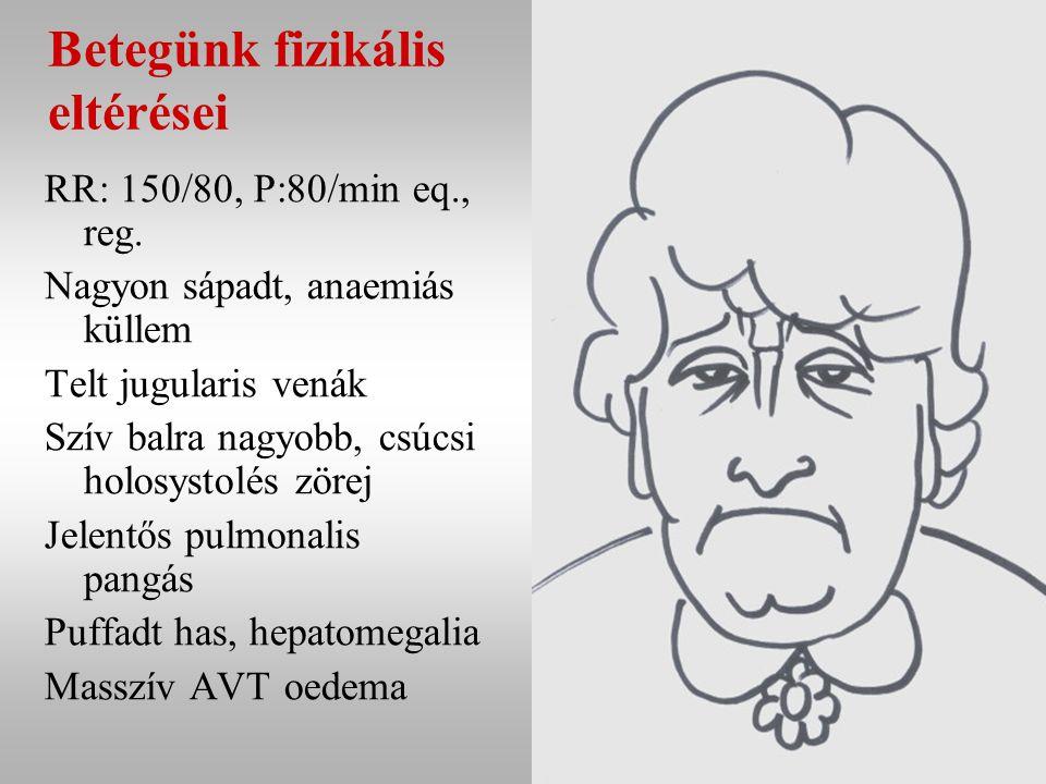 Betegünk fizikális eltérései RR: 150/80, P:80/min eq., reg.