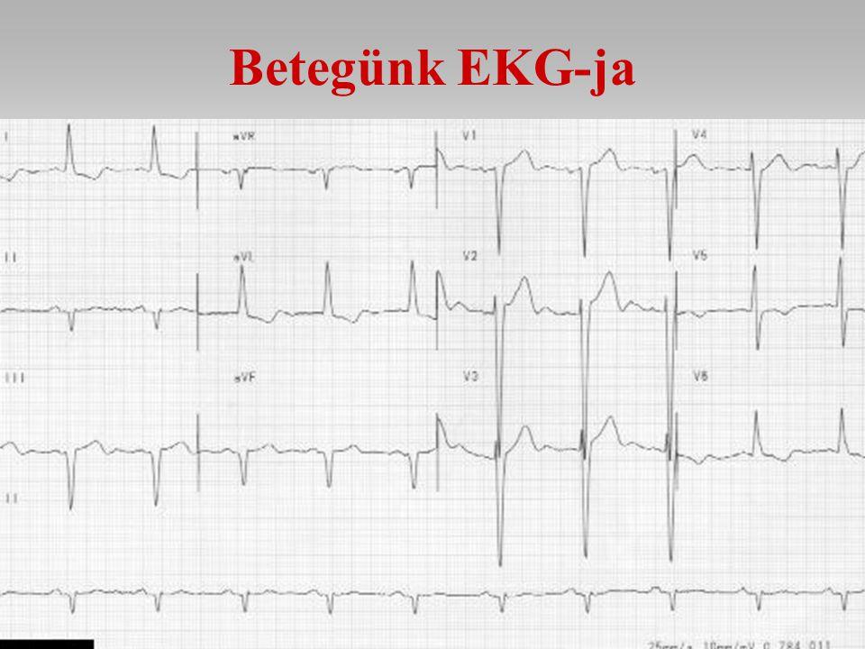 Betegünk EKG-ja