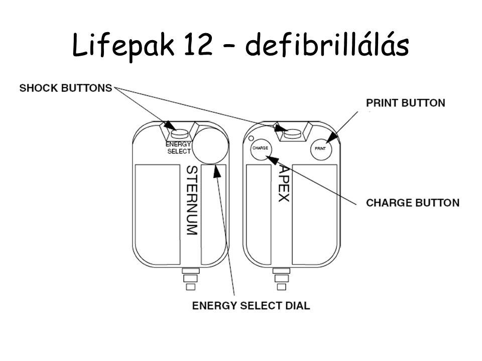 Lifepak 12 – defibrillálás