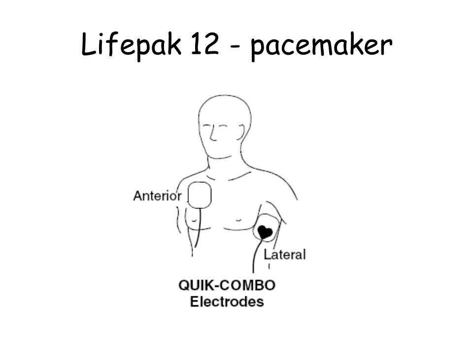 Lifepak 12 - pacemaker