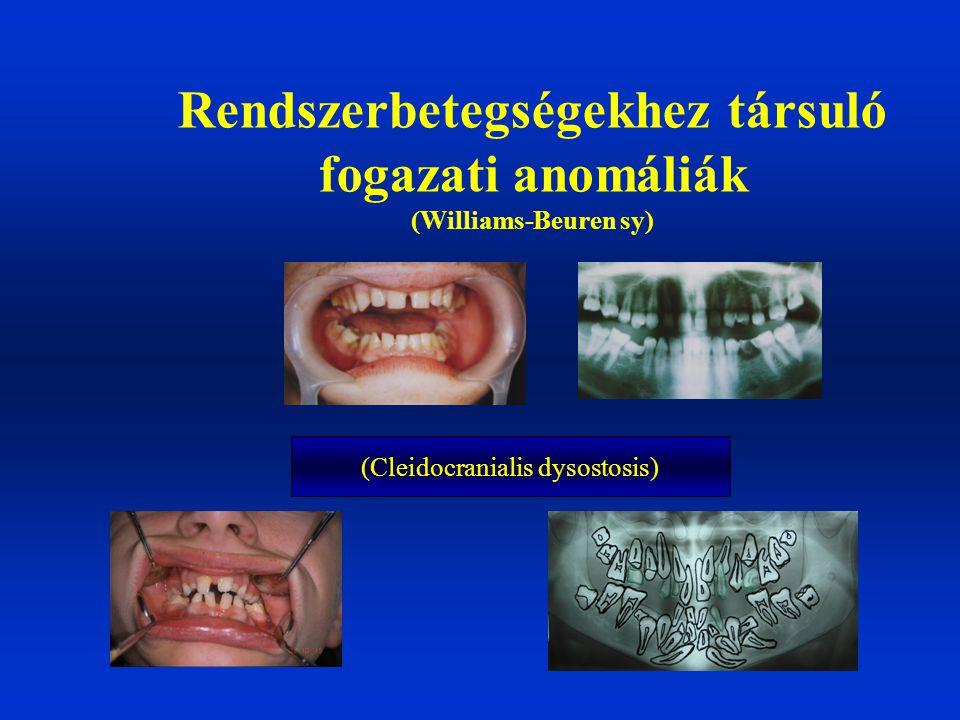 Rendszerbetegségekhez társuló fogazati anomáliák (Williams-Beuren sy) (Cleidocranialis dysostosis)