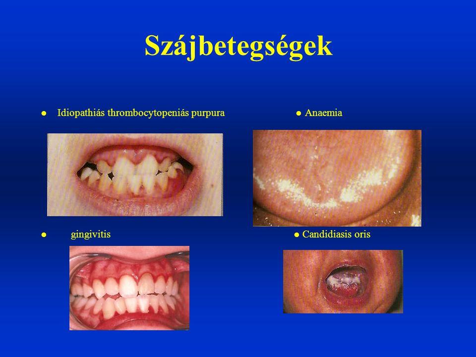 ● Idiopathiás thrombocytopeniás purpura ● Anaemia ● gingivitis ● Candidiasis oris