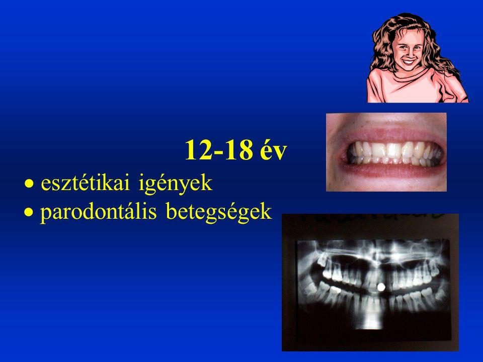 Gyermekkorban a fogak és az állcsontok állandó fejlődésben vannak