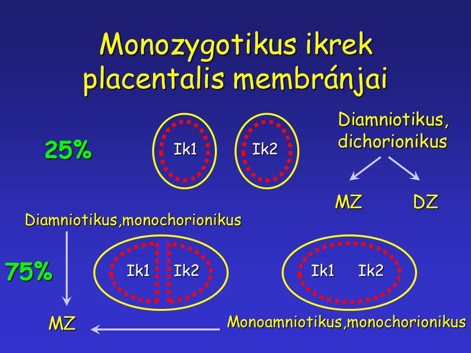 Monozygotikus ikrek placentalis membránjai Ik1Ik2 Diamniotikus,dichorionikus MZ DZ 25% Ik1Ik2Ik1Ik2 Diamniotikus,monochorionikus Monoamniotikus,monoch