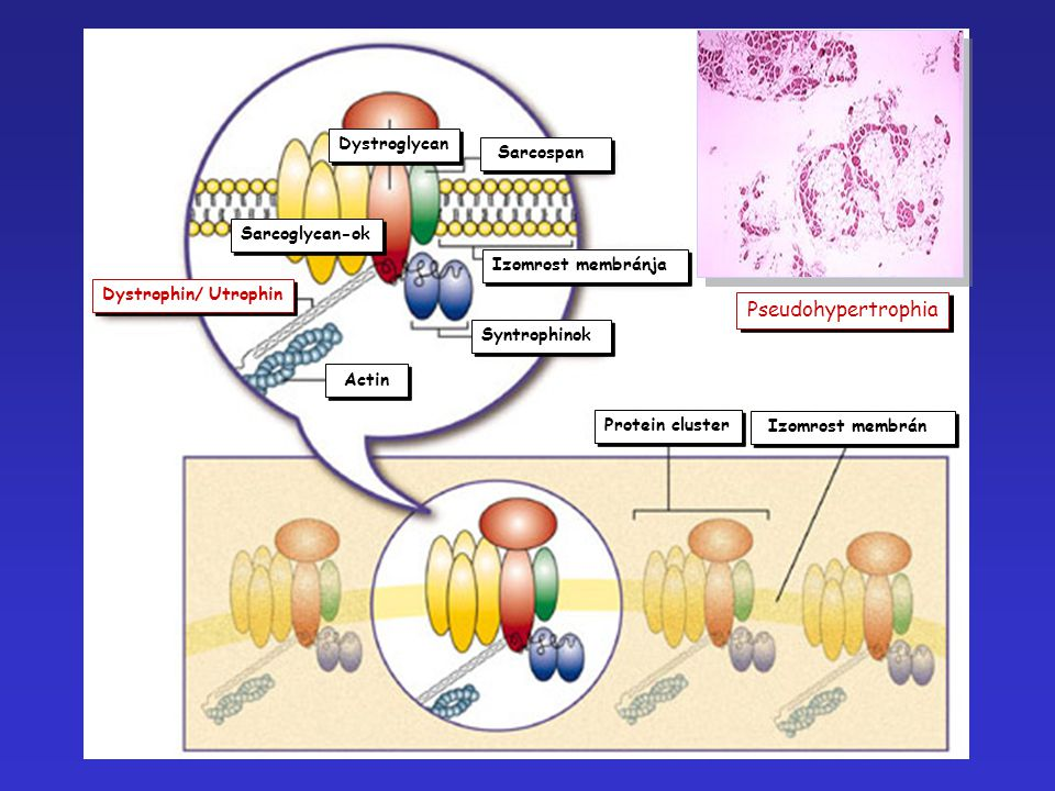 Actin Dystrophin/ Utrophin Syntrophinok Sarcoglycan-ok Dystroglycan Sarcospan Izomrost membránja Protein cluster Izomrost membrán Pseudohypertrophia