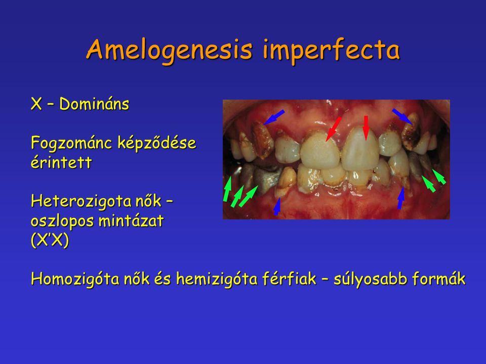 Amelogenesis imperfecta X – Domináns Fogzománc képződése érintett Heterozigota nők – oszlopos mintázat (X'X) Homozigóta nők és hemizigóta férfiak – sú