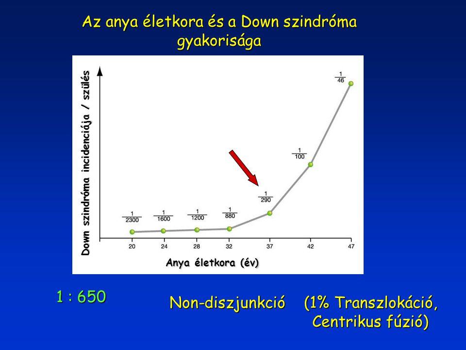 1 : 650 Non-diszjunkció (1% Transzlokáció, Centrikus fúzió) Centrikus fúzió) Az anya életkora és a Down szindróma gyakorisága Down szindróma incidenci