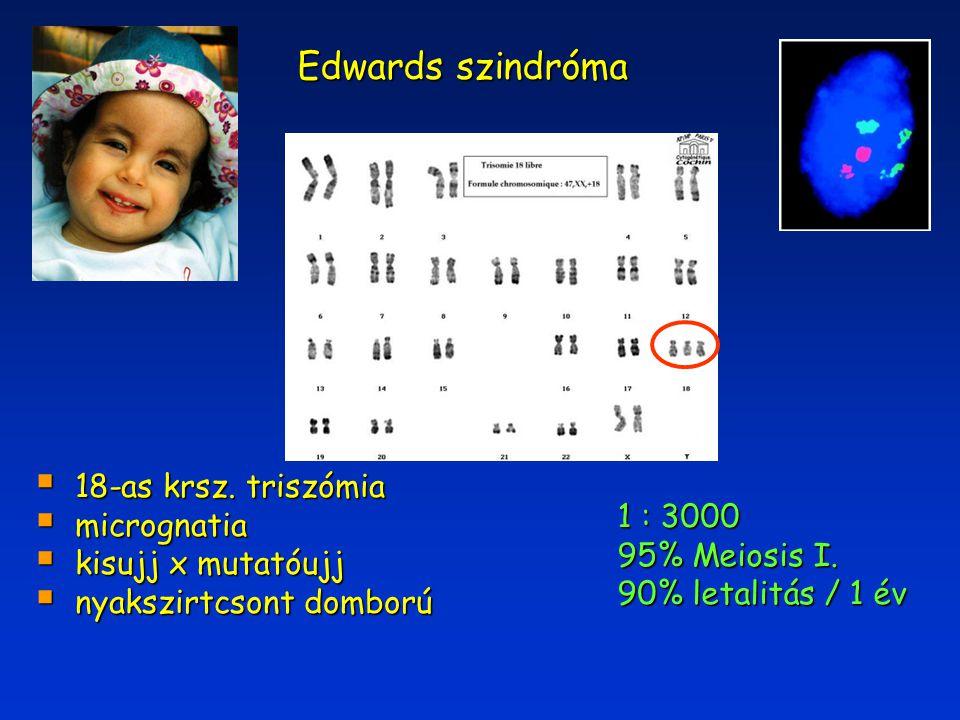 Edwards szindróma 1 : 3000 95% Meiosis I. 90% letalitás / 1 év  18-as krsz. triszómia  micrognatia  kisujj x mutatóujj  nyakszirtcsont domború