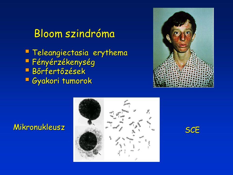 Bloom szindróma  Teleangiectasia erythema  Fényérzékenység  Bőrfertőzések  Gyakori tumorok  Gyakori tumorok. Mikronukleusz SCE