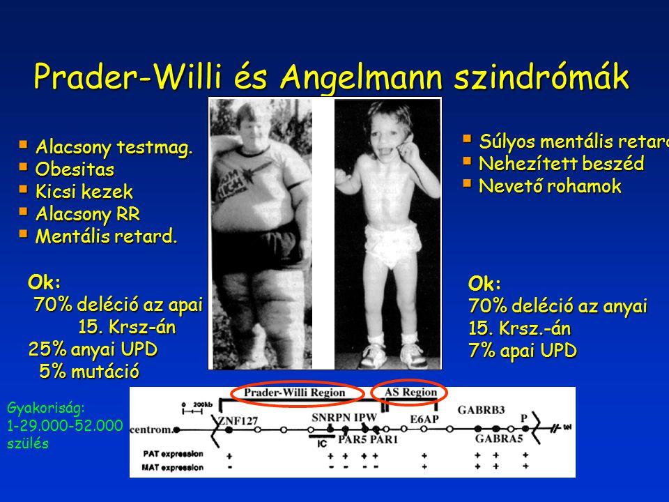 Prader-Willi és Angelmann szindrómák  Alacsony testmag.  Obesitas  Kicsi kezek  Alacsony RR  Mentális retard.  Súlyos mentális retard.  Nehezít