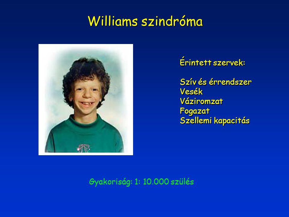 Williams szindróma Érintett szervek: Szív és érrendszer VesékVáziromzatFogazat Szellemi kapacitás Gyakoriság: 1: 10.000 szülés