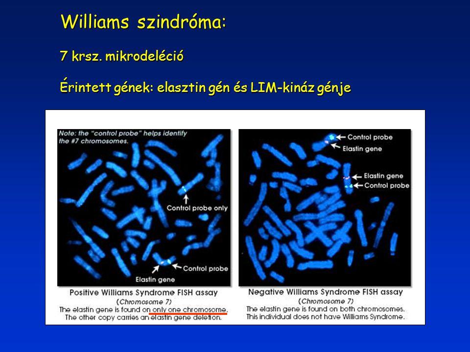 Williams szindróma: 7 krsz. mikrodeléció Érintett gének: elasztin gén és LIM-kináz génje