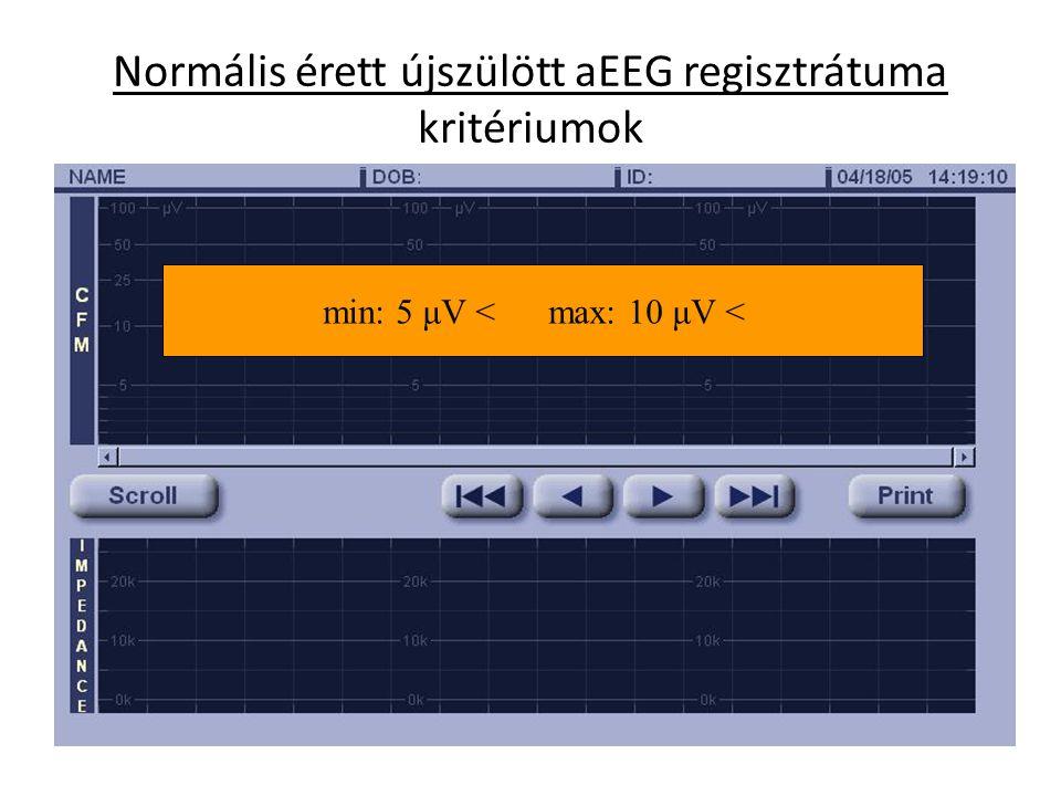 Normális érett újszülött aEEG regisztrátuma kritériumok min: 5 μV < max: 10 μV <