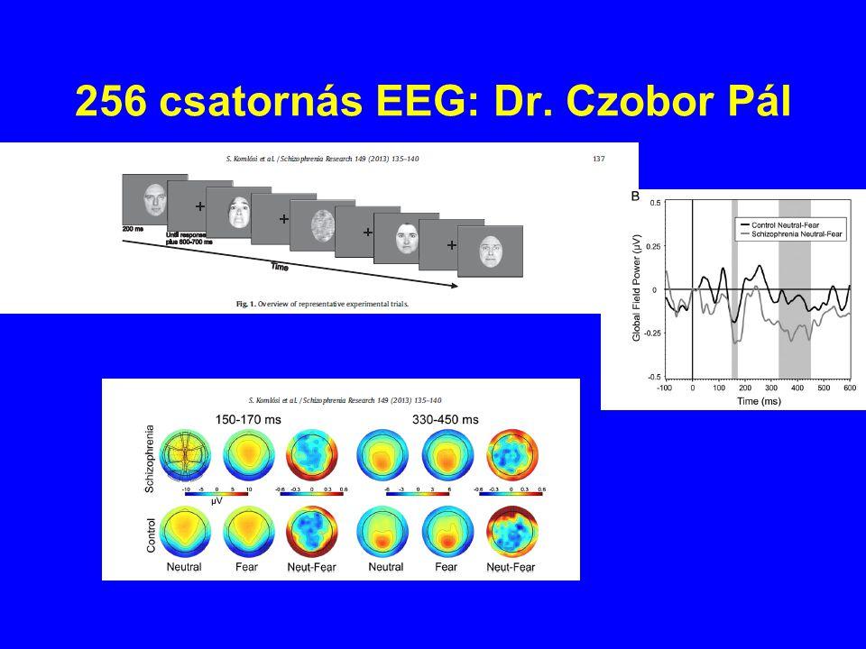 256 csatornás EEG: Dr. Czobor Pál