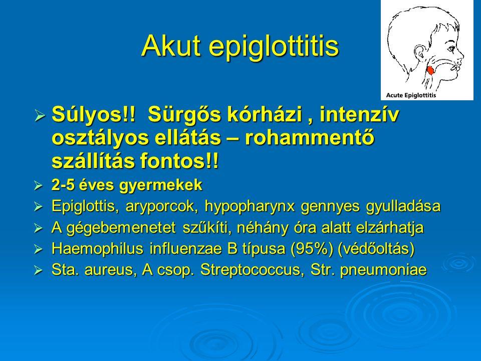 Akut epiglottitis  Súlyos!.