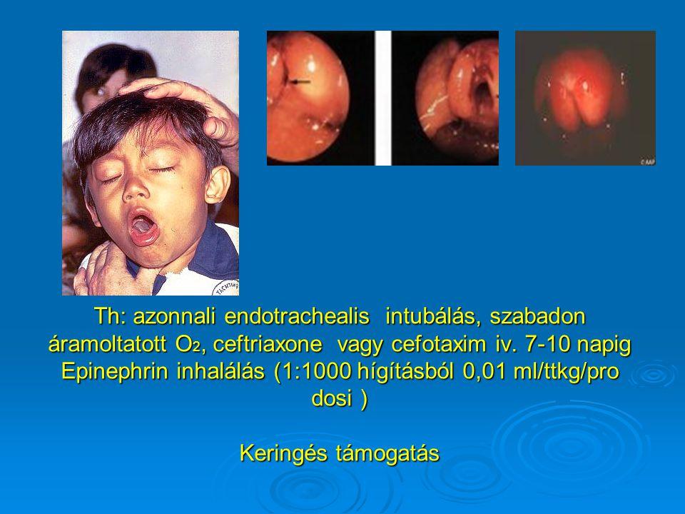 Th: azonnali endotrachealis intubálás, szabadon áramoltatott O 2, ceftriaxone vagy cefotaxim iv. 7-10 napig Epinephrin inhalálás (1:1000 hígításból 0,