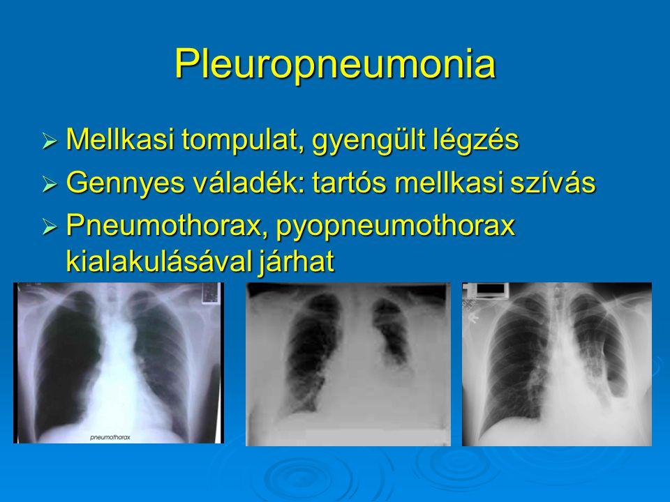 Pleuropneumonia  Mellkasi tompulat, gyengült légzés  Gennyes váladék: tartós mellkasi szívás  Pneumothorax, pyopneumothorax kialakulásával járhat