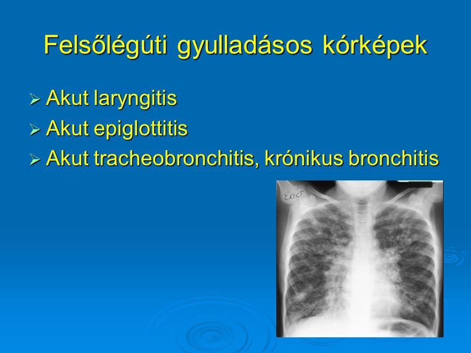 Tünetek  Láz  Köhögés  Dyspnoe, tachypnoe  Behúzódások (jugularis, intercostalis, epigastrialis) intercostalis, epigastrialis)  Mellkasi fájdalom  Kopogtatási és hallgatási eltérések