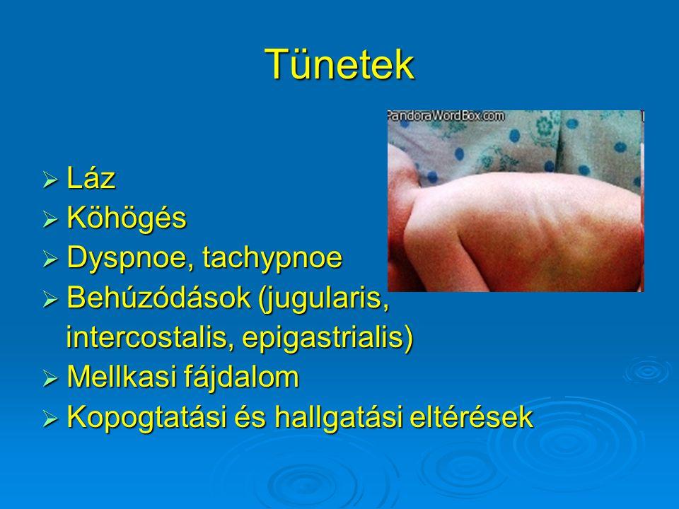 Tünetek  Láz  Köhögés  Dyspnoe, tachypnoe  Behúzódások (jugularis, intercostalis, epigastrialis) intercostalis, epigastrialis)  Mellkasi fájdalom