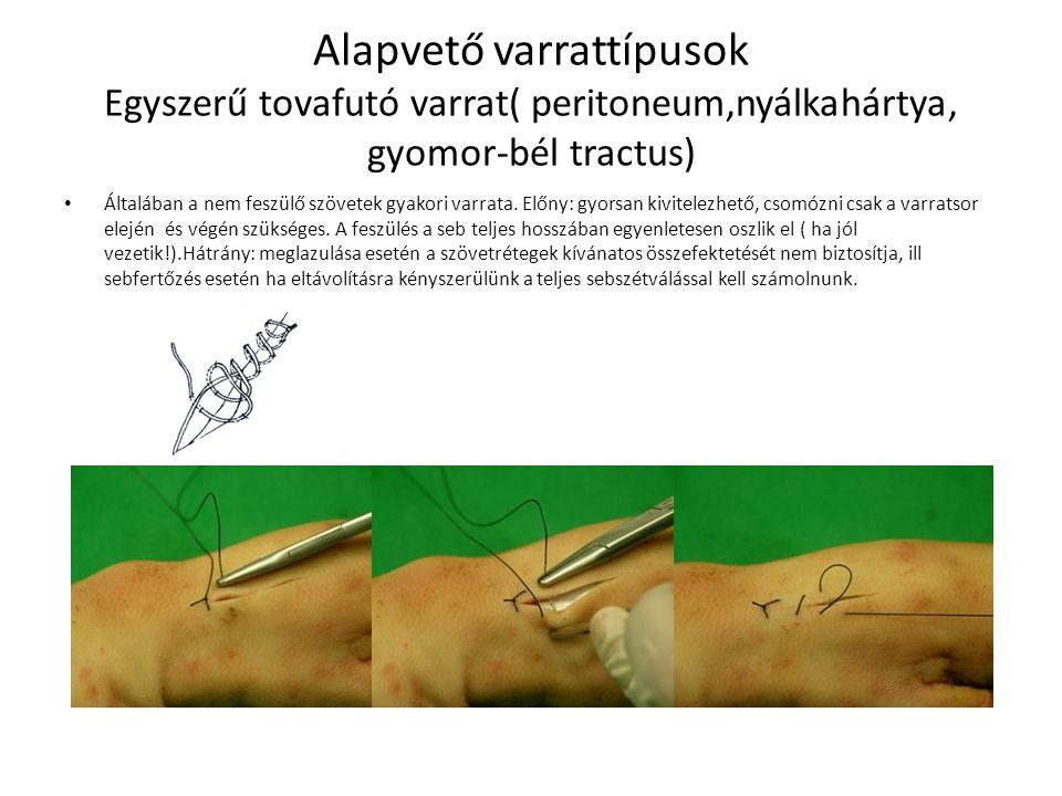Alapvető varrattípusok Egyszerű tovafutó varrat( peritoneum,nyálkahártya, gyomor-bél tractus) Általában a nem feszülő szövetek gyakori varrata. Előny: