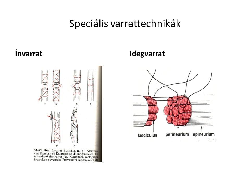 Speciális varrattechnikák ÍnvarratIdegvarrat