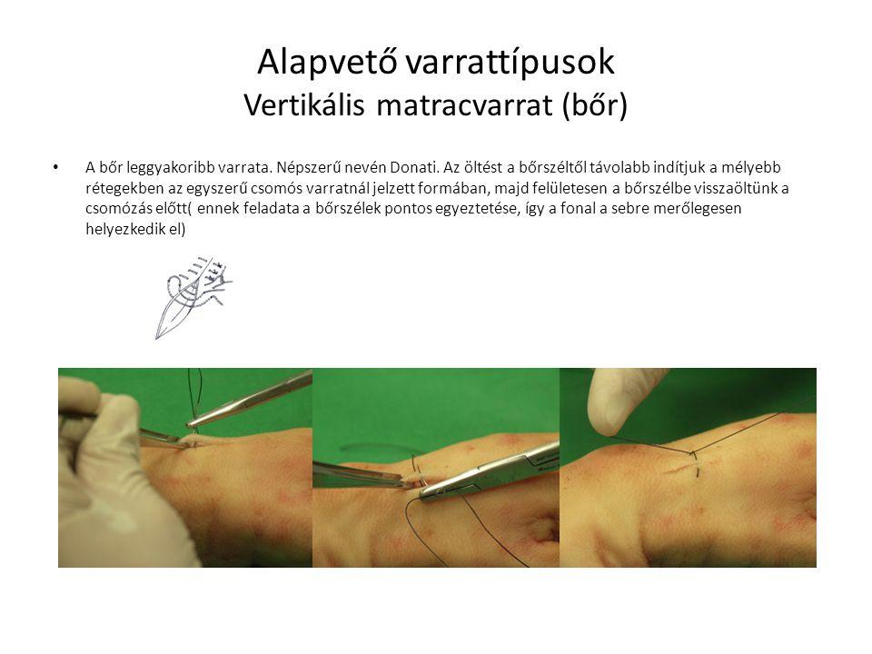 Alapvető varrattípusok Vertikális matracvarrat (bőr) A bőr leggyakoribb varrata. Népszerű nevén Donati. Az öltést a bőrszéltől távolabb indítjuk a mél