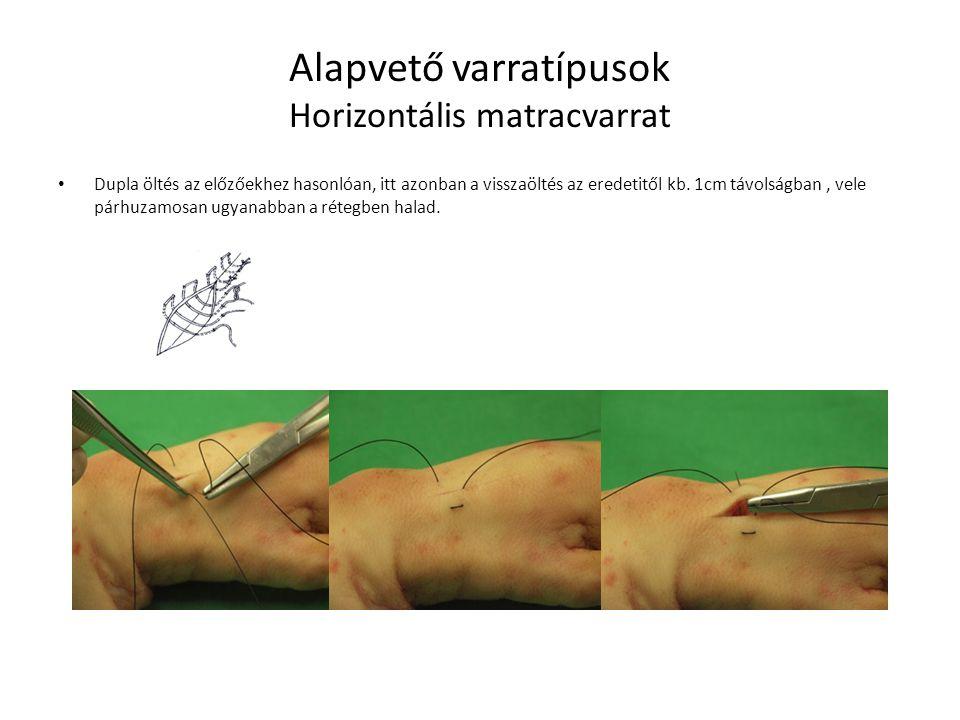 Alapvető varrattípusok Egyszerű tovafutó varrat( peritoneum,nyálkahártya, gyomor-bél tractus) Általában a nem feszülő szövetek gyakori varrata.