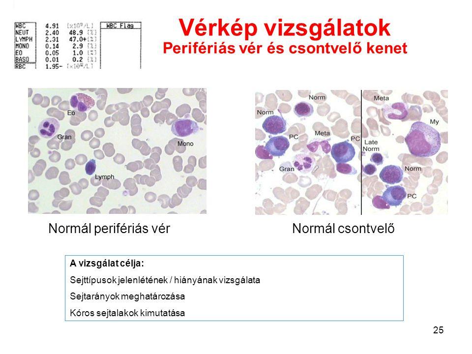 25 Normál perifériás vérNormál csontvelő Vérkép vizsgálatok A vizsgálat célja: Sejttípusok jelenlétének / hiányának vizsgálata Sejtarányok meghatározá