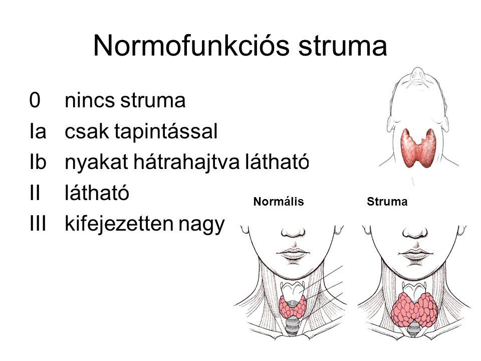 Normofunkciós struma 0 nincs struma Ia csak tapintással Ib nyakat hátrahajtva látható II látható III kifejezetten nagy NormálisStruma