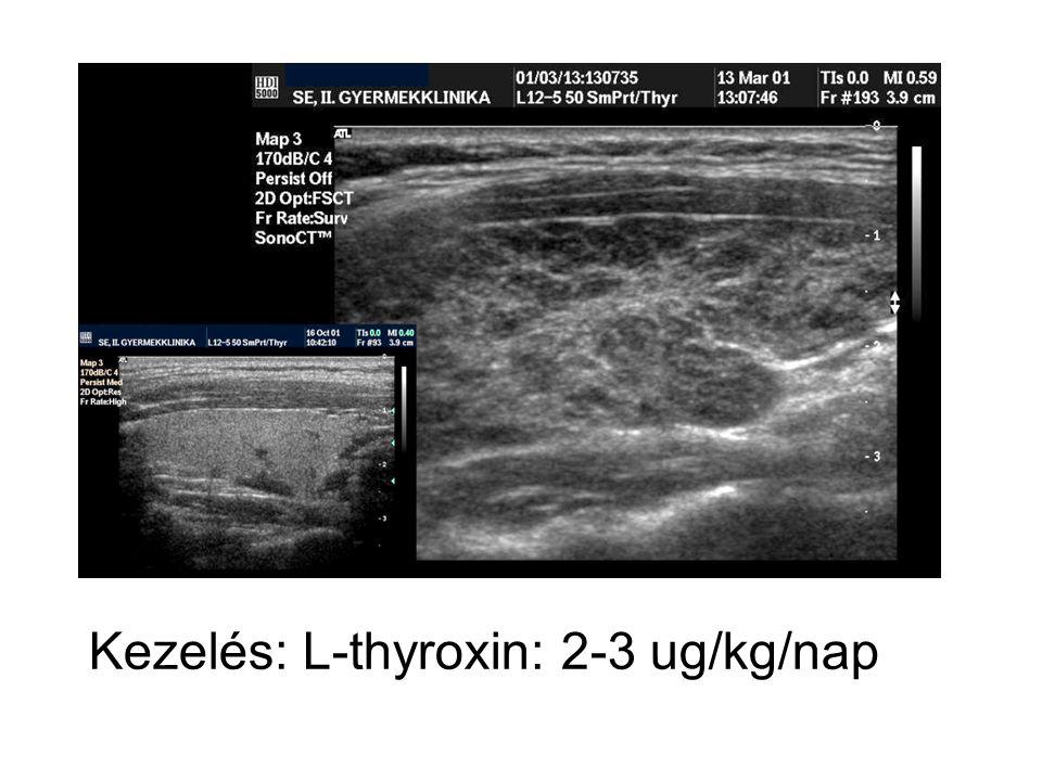Kezelés: L-thyroxin: 2-3 ug/kg/nap