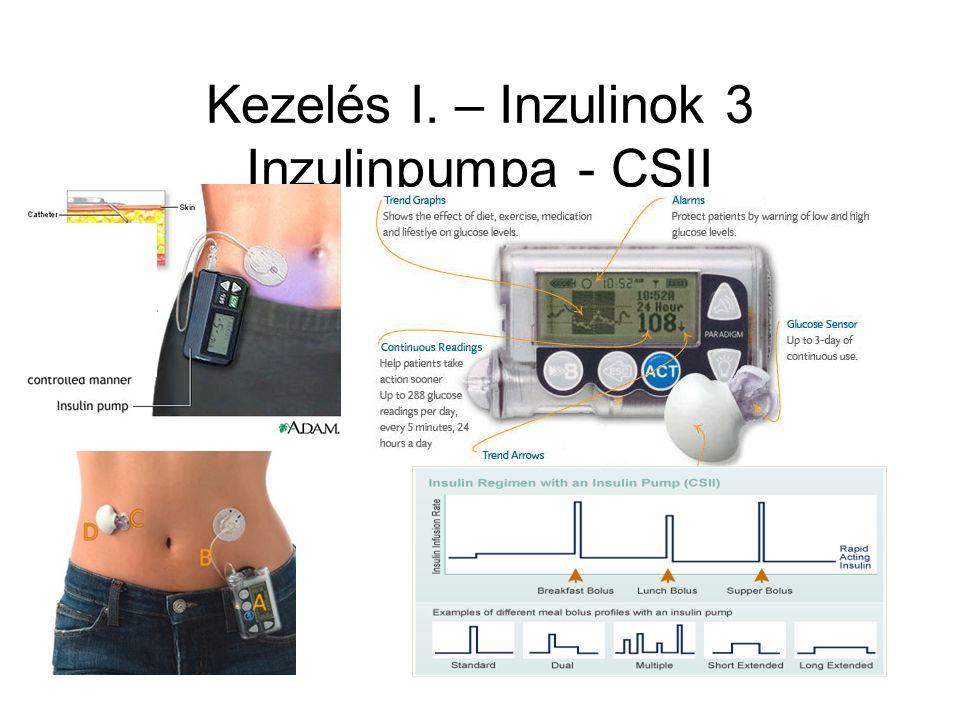 Kezelés I. – Inzulinok 3 Inzulinpumpa - CSII