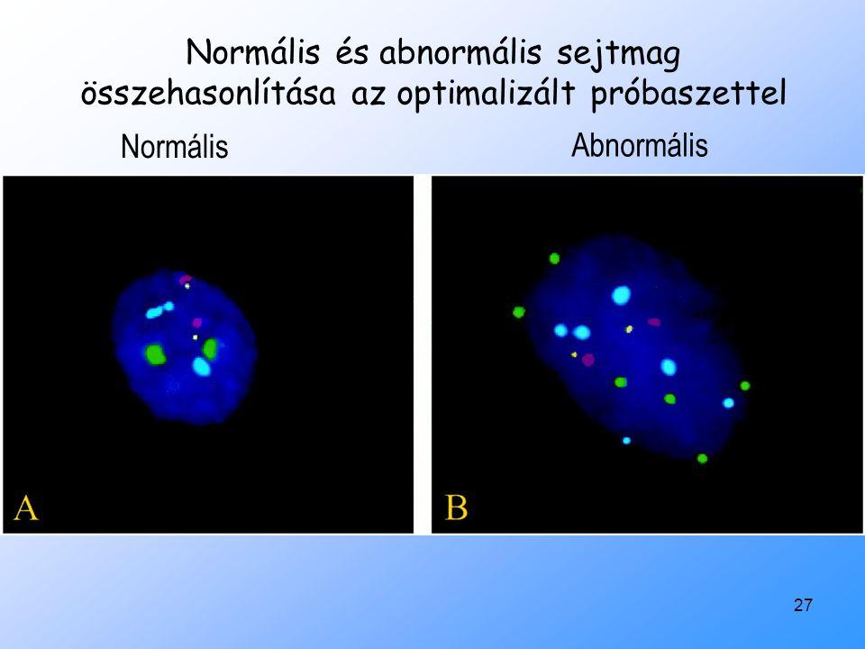 27 Normális és abnormális sejtmag összehasonlítása az optimalizált próbaszettel Normális Abnormális