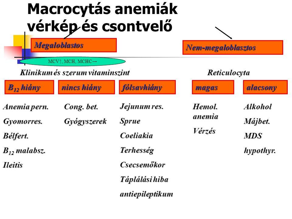 A hemolízis klinikai tünetei Sápadtság, collapsus Icterus Splenomegalia Cholelithiasis Felléphet még: ulcus cruris, aplastikus krízis, cyanosis, cardi