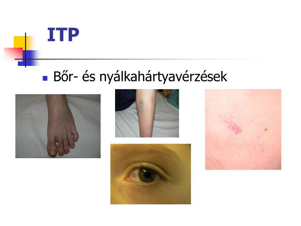ITP Akut vagy krónikus Bőr- és nyálkahártyavérzések 1-3 héttel korábban vírusfertőzés 2-4 év között 90%-ban 6 hónapon belül gyógyul társulhat más auto