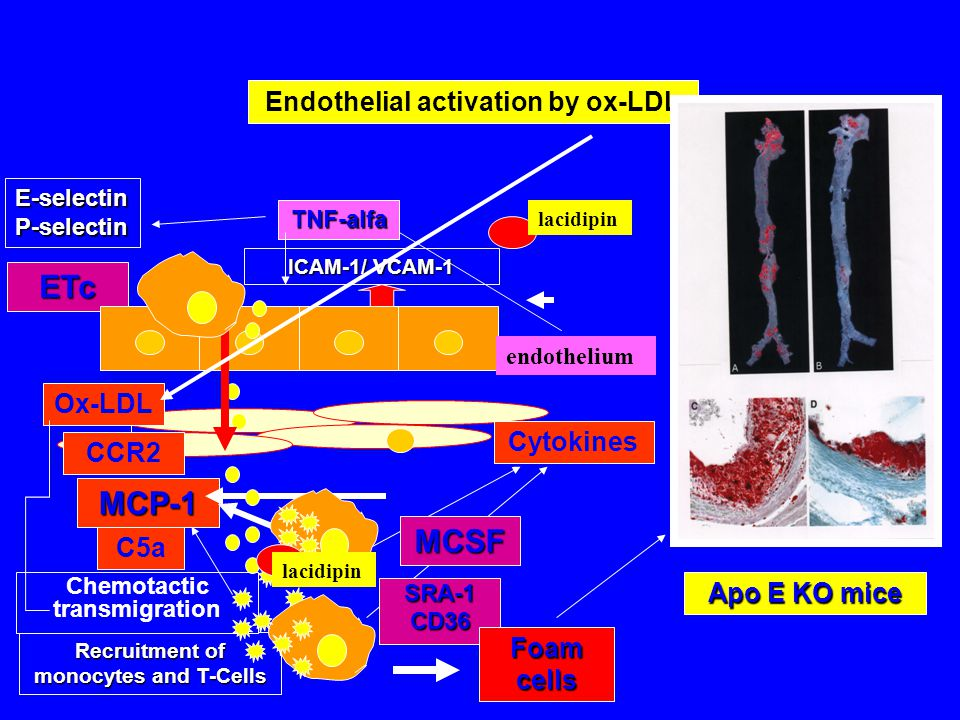 E-selectin P-selectin ETc ICAM-1/ VCAM-1 Endothelial activation by ox-LDL C5a Recruitment of monocytes and T-Cells MCP-1 Chemotactic transmigration Ox-LDL CCR2 Cytokines SRA-1CD36 MCSF Apo E KO mice TNF-alfa Foam cells endothelium lacidipin