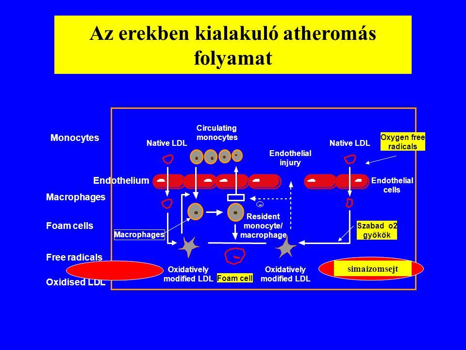 Az erekben kialakuló atheromás folyamat Soma et al., 1994 Monocytes Endothelium Macrophages Foam cells Free radicals Oxidised LDL - Circulating monocy