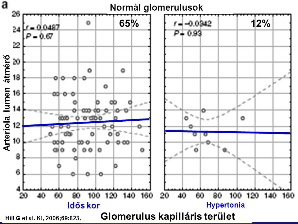 Normál glomerulusok Arteriola lumen átmérő Glomerulus kapilláris terület Hypertonia Idős kor Hill G et al. KI, 2006;69:823. 65%12%