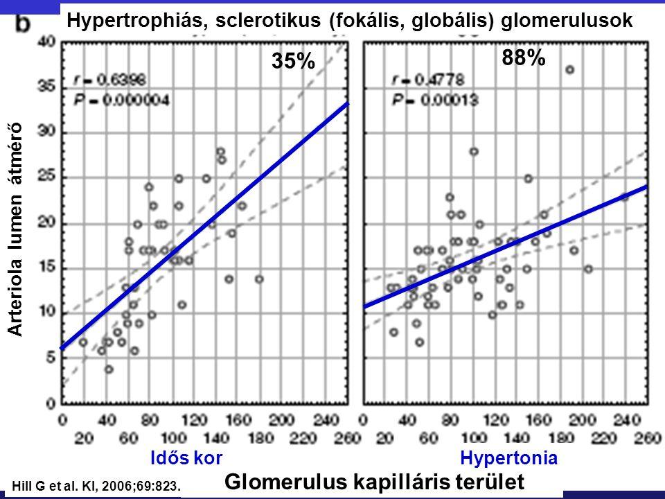 Arteriola lumen átmérő Glomerulus kapilláris terület Hypertonia Idős kor Hypertrophiás, sclerotikus (fokális, globális) glomerulusok 35% 88% Hill G et