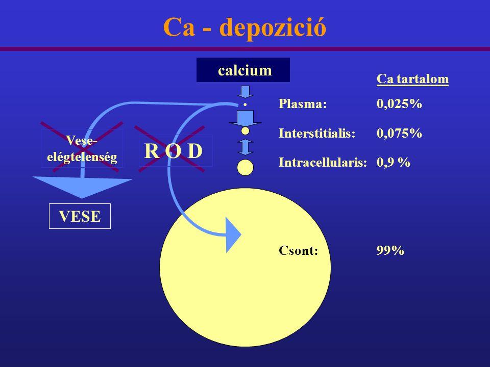 Ca - depozició. Ca tartalom Plasma:0,025% Interstitialis:0,075% Intracellularis:0,9 % Csont:99% calcium R O D VESE Vese- elégtelenség