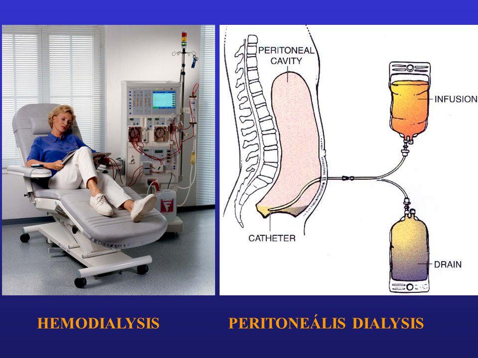 HEMODIALYSISPERITONEÁLIS DIALYSIS