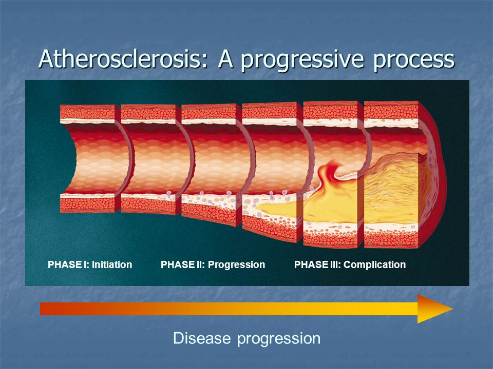 Atherosclerosis: A progressive process Disease progression PHASE I: Initiation PHASE II: ProgressionPHASE III: Complication