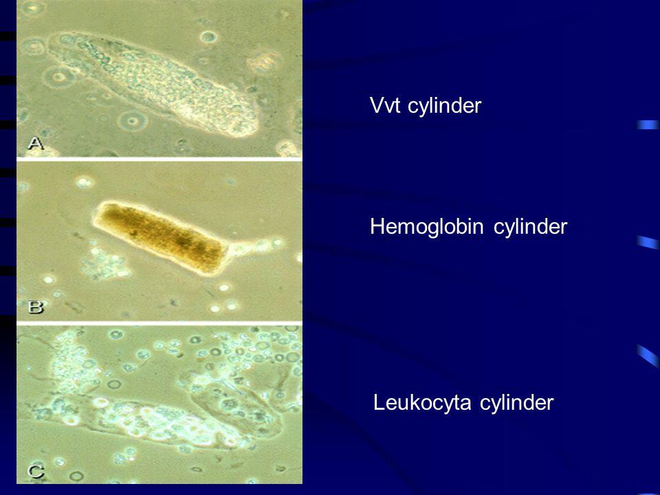 Vvt cylinder Hemoglobin cylinder Leukocyta cylinder