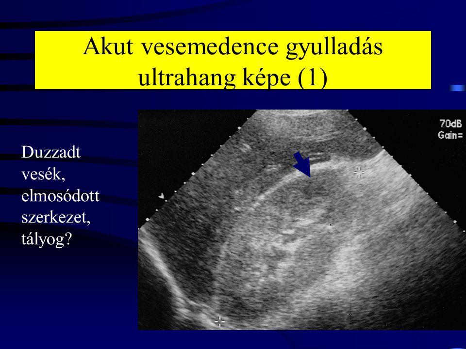 Akut vesemedence gyulladás ultrahang képe (1) Duzzadt vesék, elmosódott szerkezet, tályog?