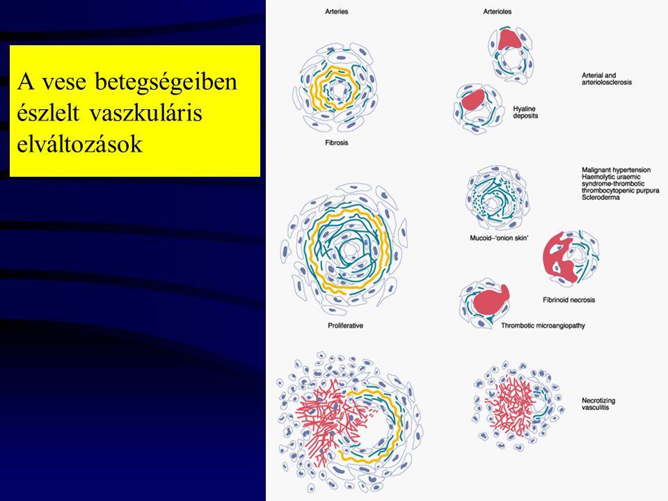 Familiáris juvenilis nephronophtisis Autosomalis recessiv forma –mentalis retardáció –cerebellár ataxia –csontbetegség –májfibrózis –szemrendellenesség(coloboma, nystagmus, myopia, strabismus,optikus ideg atrophia) –retinitis pigmentosa-renal-retina dysplasia