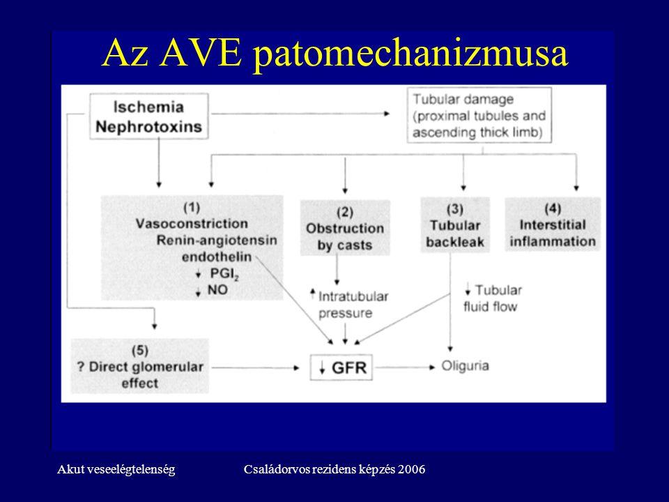 Akut veseelégtelenségCsaládorvos rezidens képzés 2006 Az AVE rizikótényezői -2 Sepsis Hypovolaemia Májelégtelenség Gépi lélegeztetés Rhabdomyolysis Nyitott szívműtét (coronaria, billentyű) Szervtranszplantáció (nem vese)