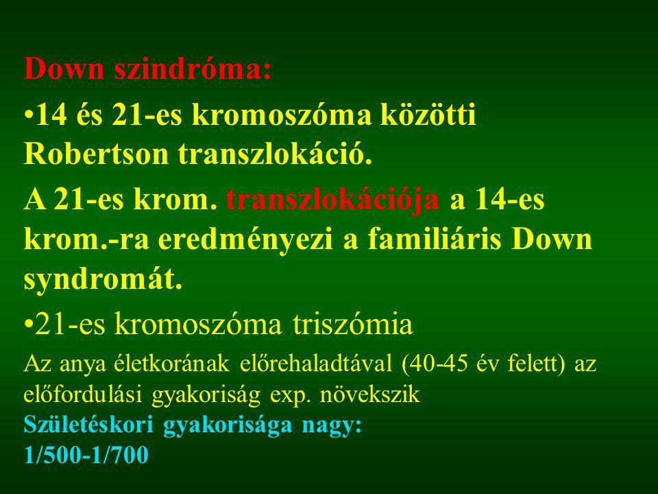 Down szindróma: 14 és 21-es kromoszóma közötti Robertson transzlokáció. A 21-es krom. transzlokációja a 14-es krom.-ra eredményezi a familiáris Down s
