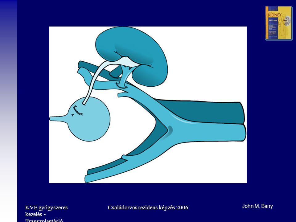 KVE gyógyszeres kezelés - Transzplantáció Családorvos rezidens képzés 2006 John M. Barry