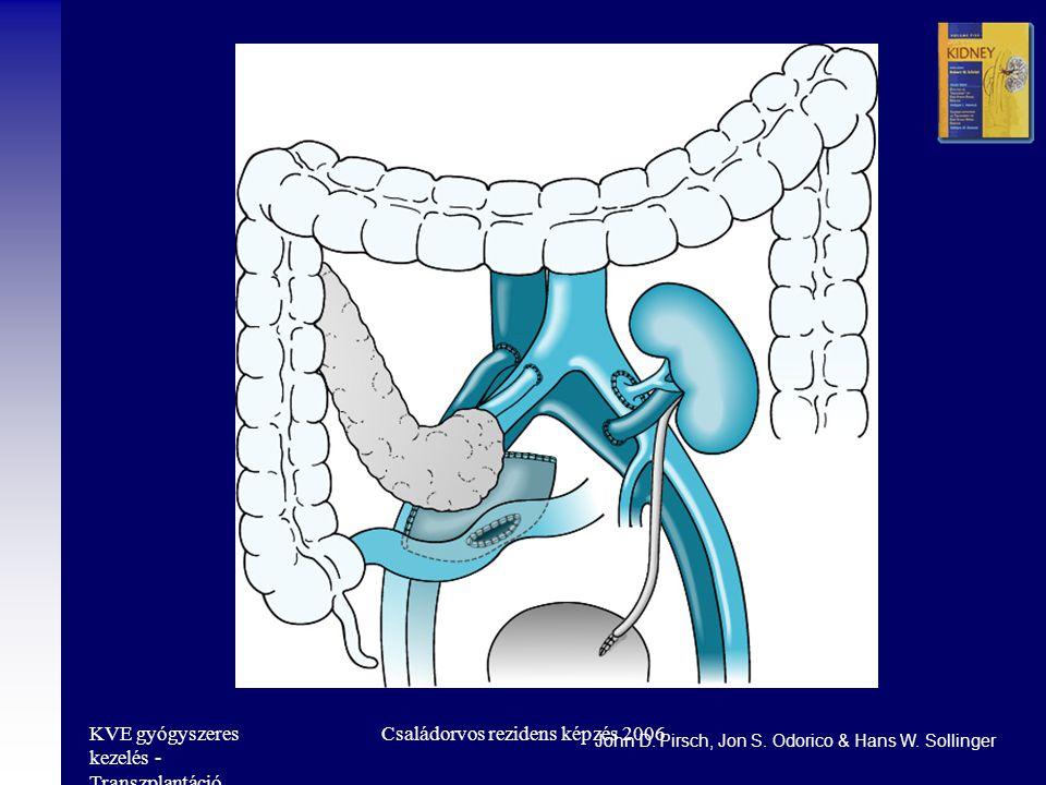 KVE gyógyszeres kezelés - Transzplantáció Családorvos rezidens képzés 2006 John D.