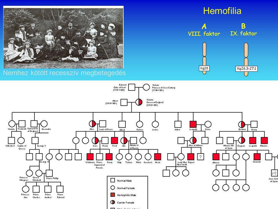 Hemofilia B IX. faktor A VIII. faktor Nemhez kötött recesszív megbetegedés