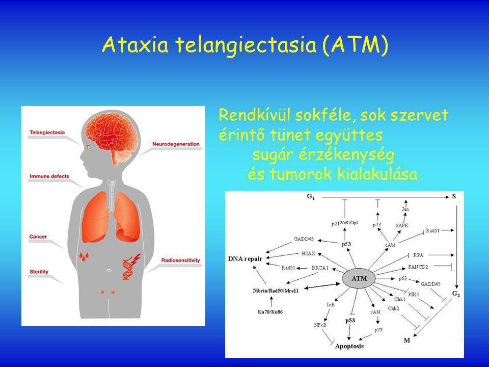 Ataxia telangiectasia (ATM) Rendkívül sokféle, sok szervet érintő tünet együttes sugár érzékenység és tumorok kialakulása